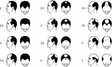 Pay for Hair Loss Hints and Tips