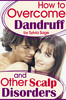 Thumbnail How To Overcome Dandruff