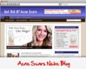 Thumbnail Acne Scars Niche Blog
