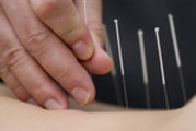 Thumbnail 80 Acupuncture Articles - High Quality Articles - PLR