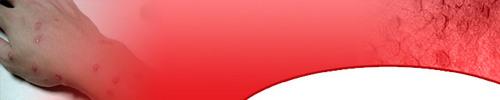 Thumbnail Moles Warts Skin Tags removal - 25 articles plus ebook and h