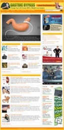 Thumbnail Gastric Bypass Website - With Private Label Rights