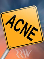 Pay for Acne Affiliate Profits