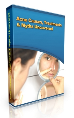 Pay for Acne Causes, Treatments & Myths Uncovered