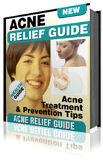 Pay for Acne Relief Guide - Acne Treatment & Prevention Tips