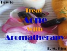 Thumbnail How to Treat Acne with Aromatherapy