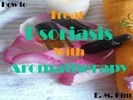 Thumbnail How to Treat Psoriasis with Aromatherapy