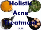 Thumbnail Holistic Acne Treatment