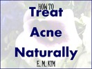 Thumbnail How to Treat Acne Naturally