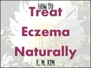 Thumbnail How to Treat Eczema Naturally