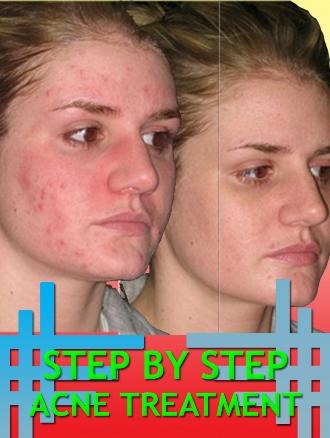 Thumbnail Step By Step Acne Treatment