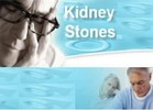 Thumbnail 51 Tips for Dealing with Kidney Stones