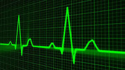 Thumbnail Heart Monitors Instant Mobile Video Site (MRR)