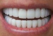 Thumbnail 25 Fresh Article PLR Cosmetic Dentistry for Disember 2011