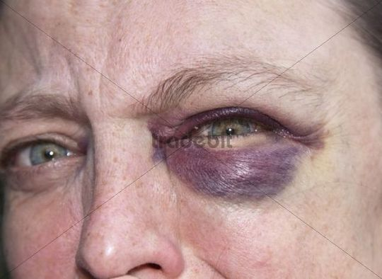 Woman aged 45 with a black eye, haematoma, bruise, effusion of blood around the eye, symbolic image for domestic violence