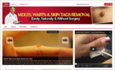 Thumbnail Moles, Warts & Skin Tags Blog - Blog with PLR License