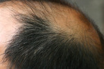 Thumbnail Attention: To Everyone Who is Concerned About Hair Loss