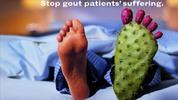 Thumbnail Los Síntomas de Gota-Causas Tratamientos