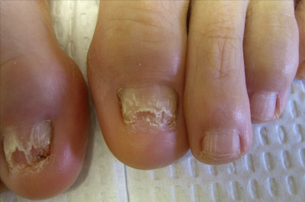 Fungal Nail Infections-Symptoms-Causes-Cures - Download eBooks