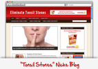 Thumbnail Tonsil Stones (Tonsilloliths) Niche Blog