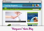 Thumbnail Fungal Diseases - Dermatophytes - Ringworm Niche Blog