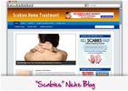 Thumbnail Scabies Niche Blog