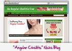 Thumbnail Angular Cheilitis Niche Blog