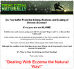 Thumbnail How to Treat and Dealing With Eczema the Natural Way!