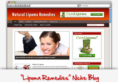 Pay for Lipoma Remedy Niche Blog